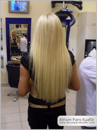 kepekli saçlara çözümler