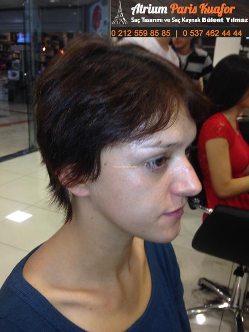 mat saç sorunları